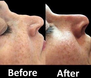 Lots of people wished to have a perfect nose to boost their self-confidence. Therefore, many people decide to go through nose surgeries today to attain a perfect nose. Nonetheless, many are frightened to encounter a proper surgical treatment. Non-surgical rhinoplasty is a revolutionary way that allows you to have a nose surgery without undergoing surgical procedure.