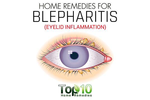 Posterior Blepharitis Natural Remedies