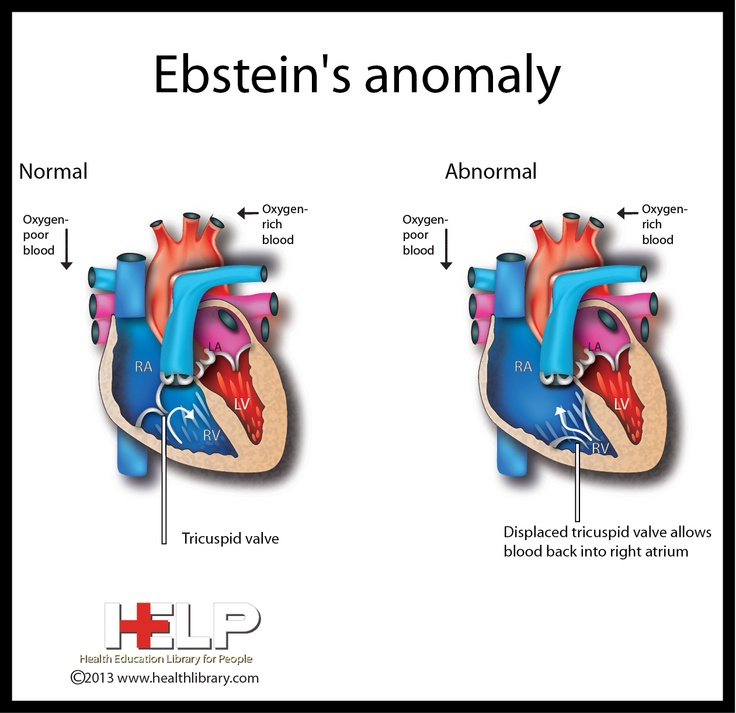 Ebstein's Anomaly: cyanosis; a/w WPW. Tx procainamide or propafone (no BB, CCB !). Surgery if severe (decr exercise capacity, very tachycardic, cyanosis w/resting O2 sat <90%, symptomatic TR, TIA/CVA)