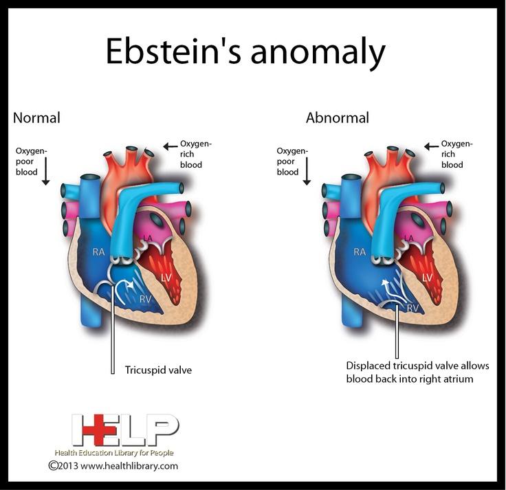 Ebstein's Anomaly: cyanosis; a/w WPW. Tx procainamide or propafone (no BB, CCB !). Surgery if severe (decr exercise capacity, very tachycardic, cyanosis w/resting O2 sat <90%, symptomatic TR, TIA/CVA)