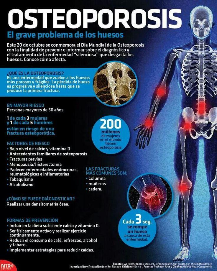 La osteoporosis es una patología que afecta a los huesos y está provocada por la disminución del tejido que lo forma, tanto de las proteínas que constituyen su matriz o estructura como de las sales minerales de calcio que contiene.  Clínica de Artrosis y Osteoporosis . www.clinicaartrosis.com; Bogotá, Colombia. PBX: 571- 6923370; Móvil +57 311-2048006