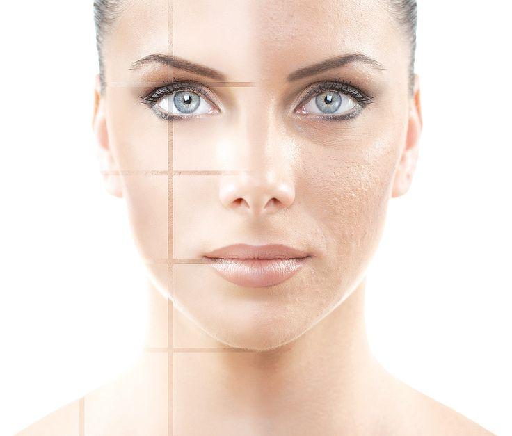 vette huid verzorging tips beauty