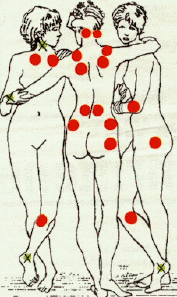 Se sortir de la fibromyalgie | La Nutrithérapie