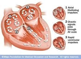 5 Tips To Understand Atrial Fibrillation and Heart Disease-Under normal conditions, the rate of your heartbeat is controlled by an electrical impulse. This impulse is generated within the heart itself by the S.A node (sinoatrial node). In Atrial fibrillation this electrical impulse runs haywire causing your heart to beat faster and irregularly, and can go up to 400 times in a minute.http://5tipsto.com/atrial-fibrillation/#sthash.pWzPP61Z.dpuf