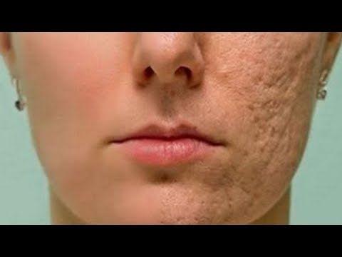 Reibe diese Mixtur auf deine Haut, Narben und Falt…