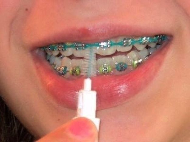 And clean your teeth three times a day with one of these...