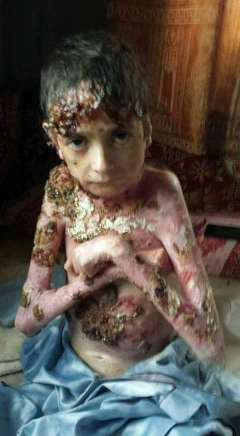 Russian phosphorus burn our children to death in Syria  ‪#‎PutinChidlKilker‬ #UN_Terrorism_Org