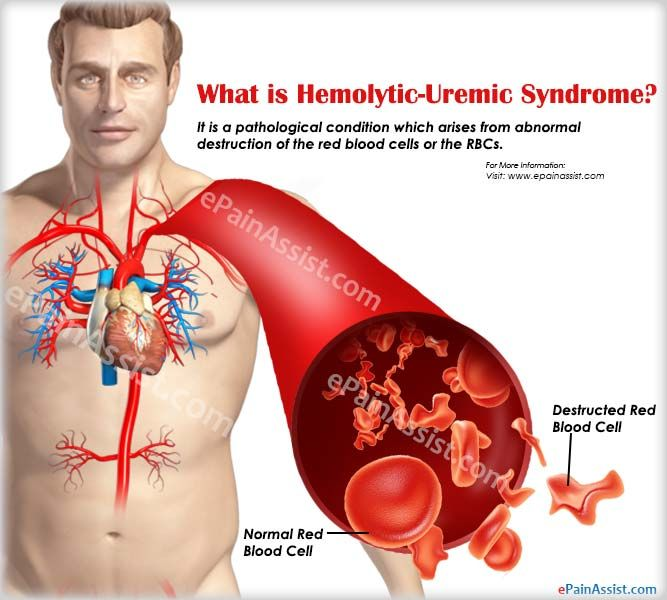 What is Hemolytic-Uremic Syndrome, Know its Causes, Symptoms, Treatment #HemolyticUremicSyndrome #healthcare #blooddiseases #DiseaseControl‬ #Redbloodcells #RBC #infections #ePainAssist‬ Read: http://www.epainassist.com/blood-diseases/what-is-hemolytic-uremic-syndrome