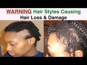 Traction Alopecia- Prevention and Stimulating Hair Growth | Curly Nikki | Natural Hair Care