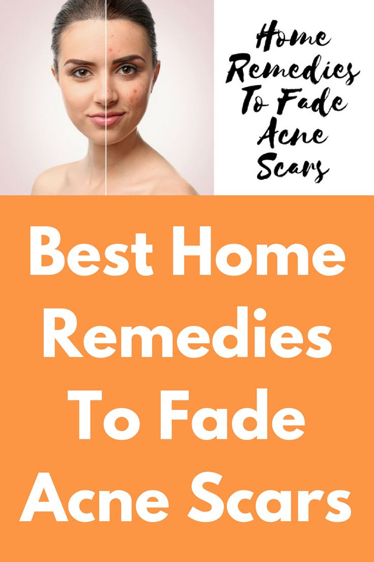 43174ddb375372cd38ee6d13bc570e52 - How To Get Rid Of Back Acne Scars Home Remedies