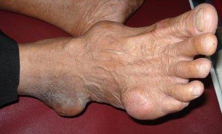 obat kaki bengkak karena asam urat