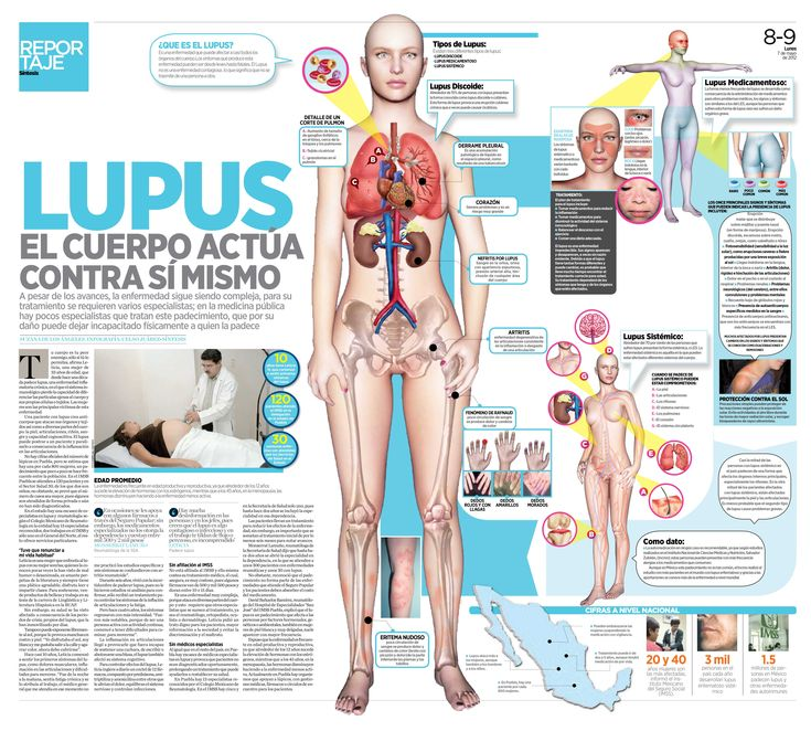 Lupus {Spanish}