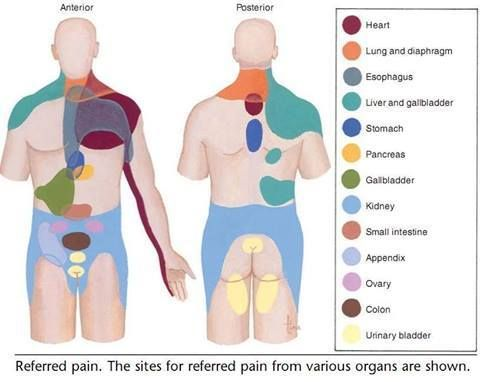 www health gossip com Chart showing reffered pain from