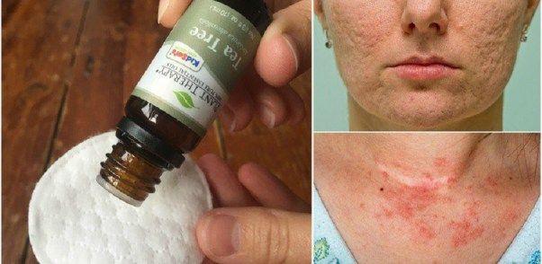 A teafaolaj 10 felhasználási módja, hogy meggyógyítsd a bőr mindenféle betegségeit! ÉletmódEgészség2017/04/05