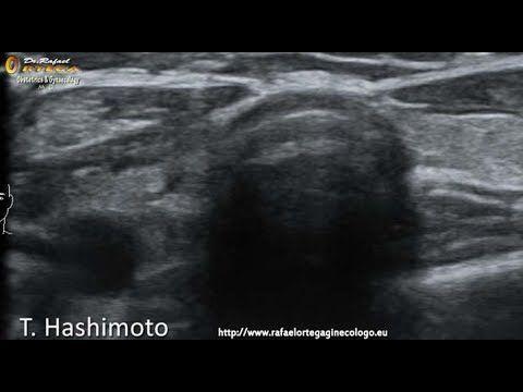 Tiroiditis de  Hashimoto  con afectacion  cardiovascular y hepatica   Dr...