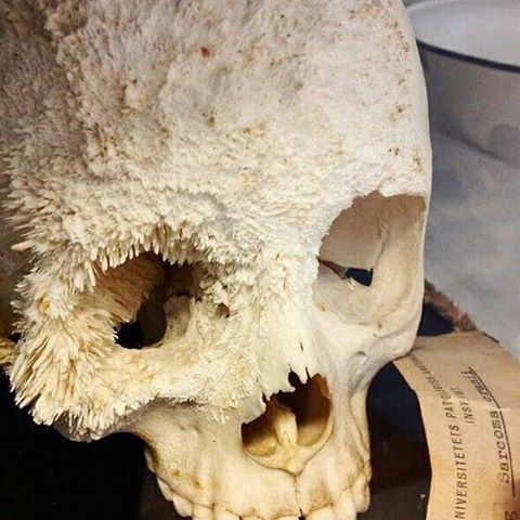"Bone cancer. A rare and fascinating case of cranial osteosarcoma.  Also known as ""Osteogenic Sarcoma"", Osteosarcoma is the most common primary malignant bone tumor in children and adolescents, with peak incidence between the second and third decades of life.  #anatomy #disease #medical #medicine #skull #skeleton #nursing #rn #premed #md #medschool"