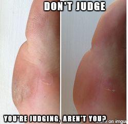 Listerine and Vinegar Pedicure Foot Soak