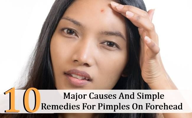 how to avoid pimples on forehead