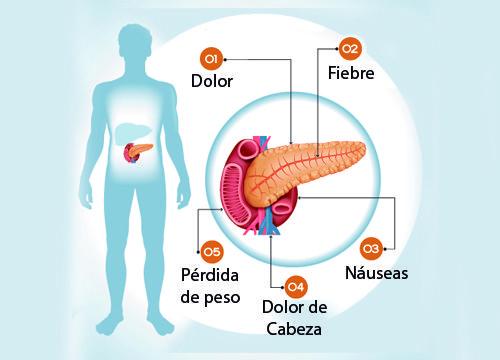 Conoce los síntomas de enfermedades asociadas al páncreas, ese órgano esencial para nuestro organismo y nuestra digestión.¡No te lo pierdas!