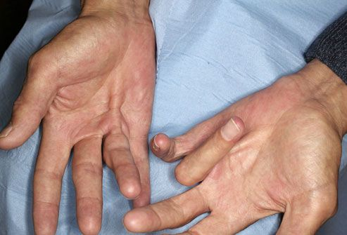 Dupuytren's contracture - Causes include Alcohol, Diabetes, Epilepsy, Family History and Trauma