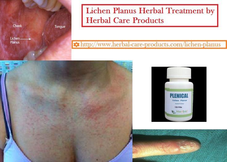 Natural Herbal Treatment for Lichen Planus Symptoms ...