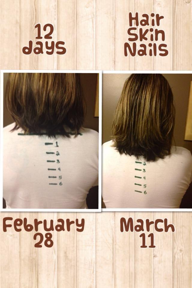 Natural Ways To Make My Hair Grow Faster