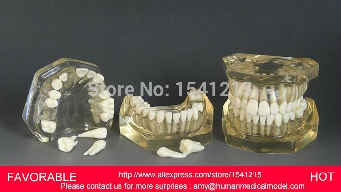 65.00$  Watch here - http://ali794.worldwells.pw/go.php?t=32739181698 - TOOTH CARIES MODEL,ORAL TRAINING MODEL,DENTAL CAST MODEL  ,REMOVABLE TRANSPARENT DENTAL MODEL DENTITION-GASEN-DEN039 65.00$