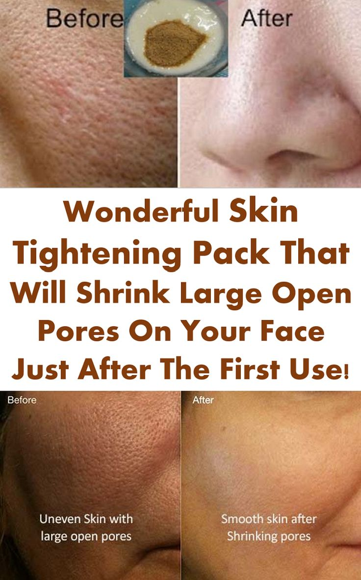 Wonderful Skin Tightening Pack That Will Shrink Large Open Pores On Your Face Just After The First Use!