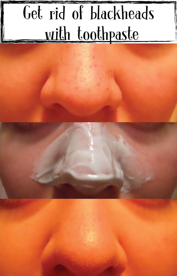 Sbarazzarsi di punti neri con dentifricio