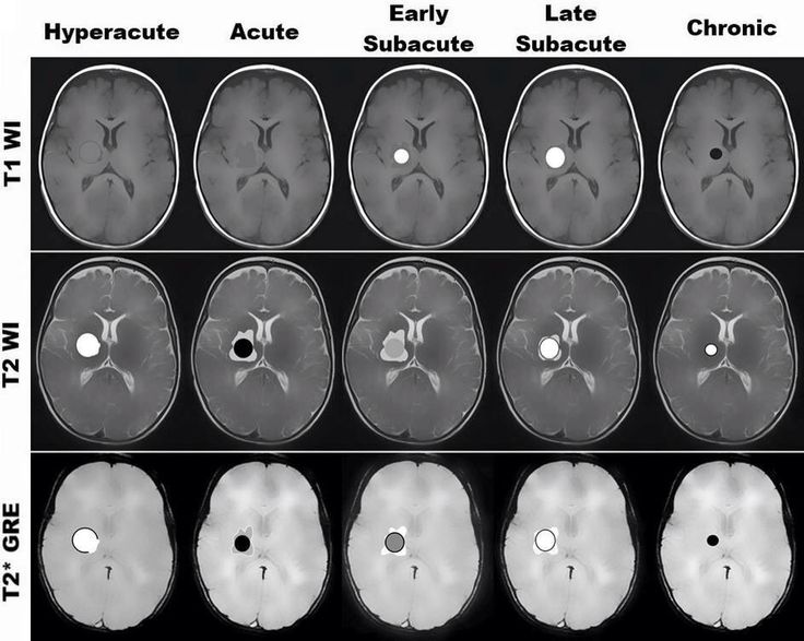 Stages of cerebral hemorrhage. The appearance and evaluation of intracranial hemorrhage on MRI primarily depend on the age of the hematoma and on the imaging sequence or parameters (eg, T1 weighting, T2 weighting, T2* weighting). #MRI #hemorrhage #intracranial_hemorrhage