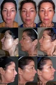 skincerity before and after - wrinkles gone, tightness and youth back!!! Order at www.ewatt.mynucerity.biz