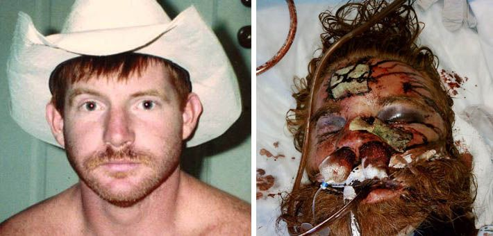 This is a before/after picture of Kelly Thomas of Fullerton, CA, a homeless man, who was beaten to death.  Police officers were acquitted of his murder. |   :'(