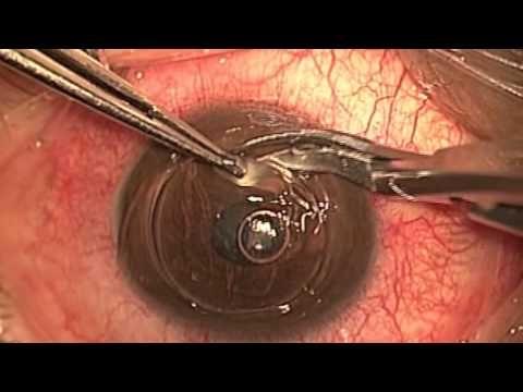 Trasplante de Cornea - Dr. Abel Mauricio Martinez - YouTube