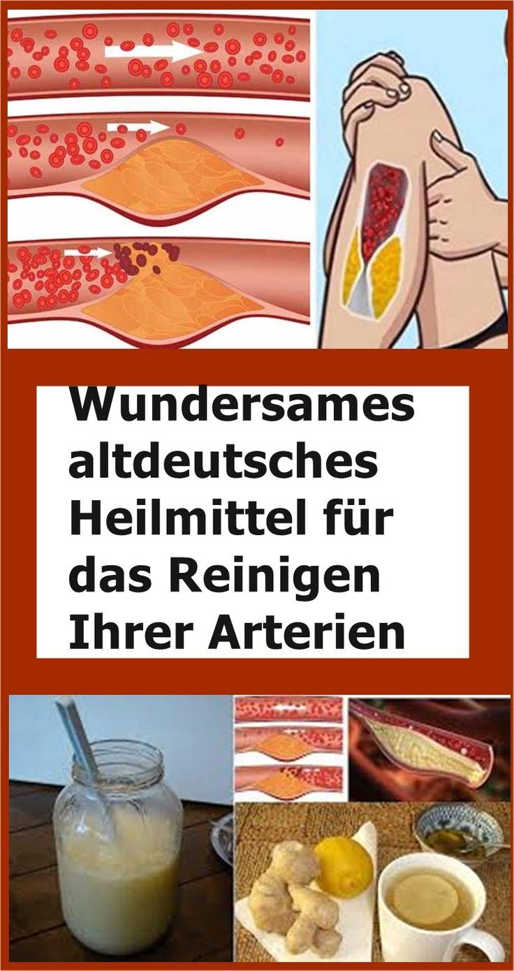 Wundersames altdeutsches Heilmittel für das Reinigen Ihrer Arterien   njuskam! Julia Blehm