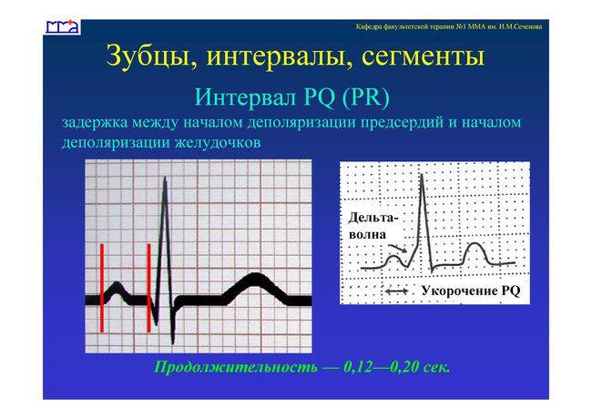 """• Зубцы, интервалы, сегменты ЭКГ - Шпаргалки для """"скорой помощи"""""""
