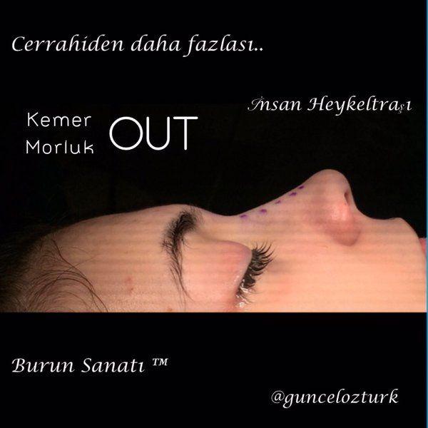 Cerrahiden daha fazlası.. #insanheykeltrasi @guncelozturk ❤️... #burunsanati ™ #burunestetigi  #rinoplasti
