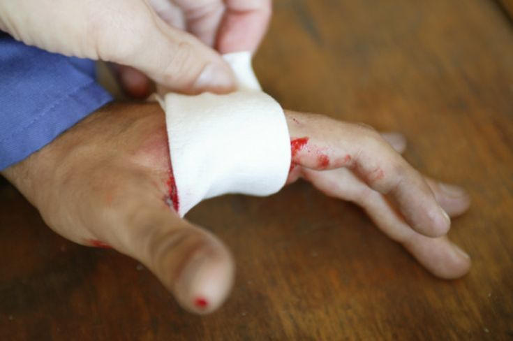 Basic First Aid Procedures: Basic First Aid for Bleeding