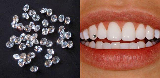 Có nên đính đá vào răng không? - Lấy cao răng an toàn