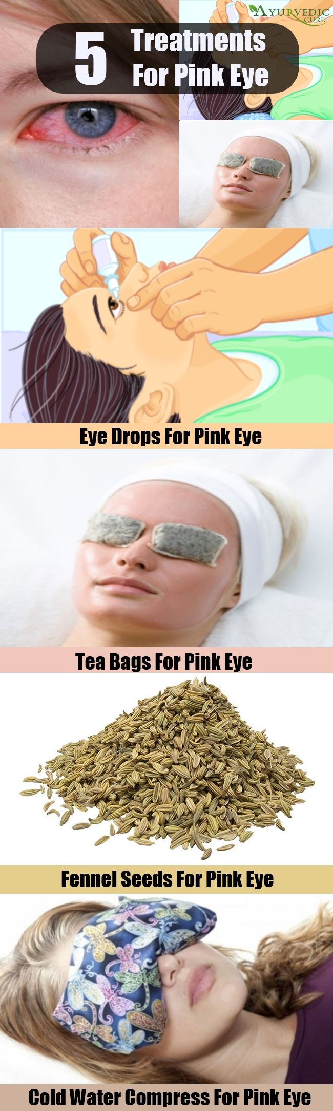 how to clear conjunctivitis naturally