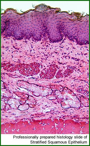 Histology Slide showing Stratified Squamous Epithelium - professionally prepared using histology stains.