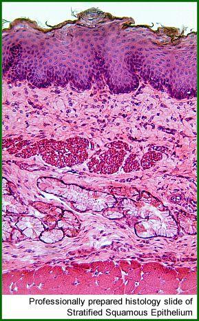 Histology Slide showing Stratified Squamous Epithelium - professionally prepared using histology stains.