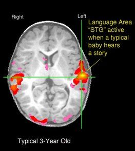 fMRI image of brain lit up when baby hears a sound