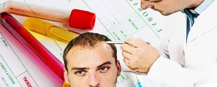 Terapia de plasma rico en plaquetas para alopecia  http://www.infotopo.com/salud/terapias-alternativas/terapia-de-plasma-rico-en-plaquetas-para-alopecia