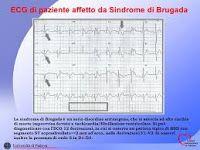 Cervelliamo: SINDROME DI BRUGADA, LA CURA E' ITALIANA