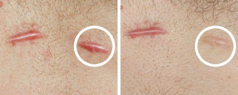 scars before and after silicone gel http://www.futurederm.com/2012/11/06/study-focus-moisturization-is-very-important-for-scar-and-stretch-mark-repair/