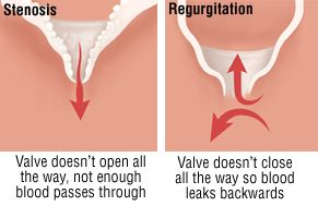 heart valve problems - difference between stenosis and regurgitation