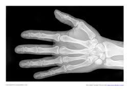 X-rays photo set (SB8272) - SparkleBox