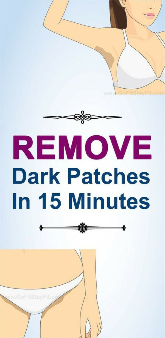 Dark skin spots or patches are a common issue which affect many people and even though it's not a medical problem per say it's still very unattractive and everyone who has it tries their best to fix this problem.