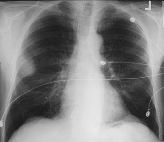 Bronchial-adenoma-x-ray