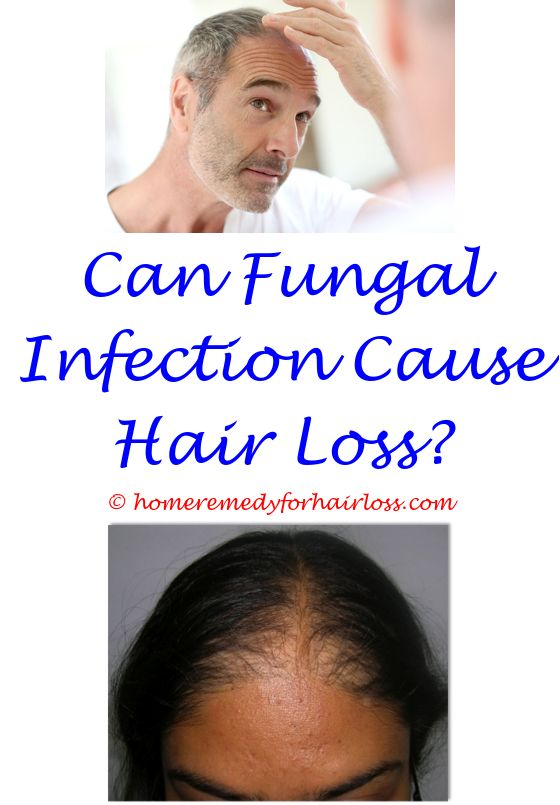 Male Hair Replacement Hair Loss Eyebrow Hair Loss And Eyebrow